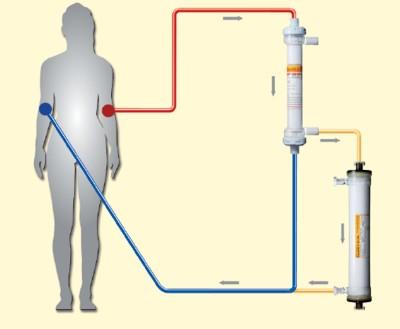 Lipidfiltration mit dem Plasmaseparator Plasmaflo und dem Lipidfilter